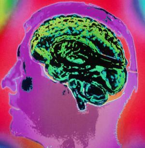 Escaneo del cerebro