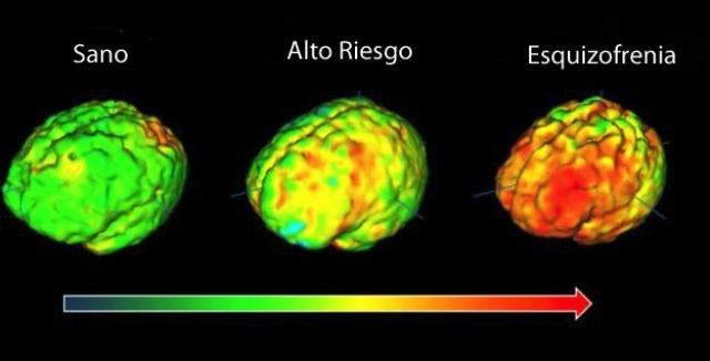 Cerebro normal y de un esquizofrénico